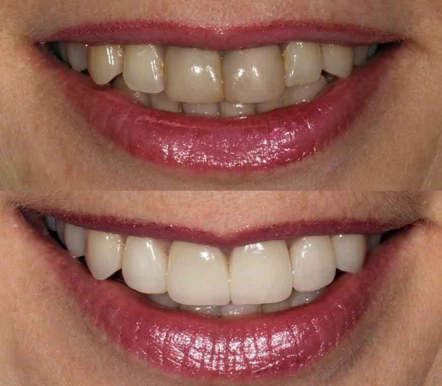Como mejorar el color de los dientes.